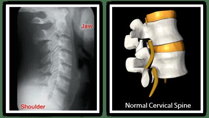 Normal Spine